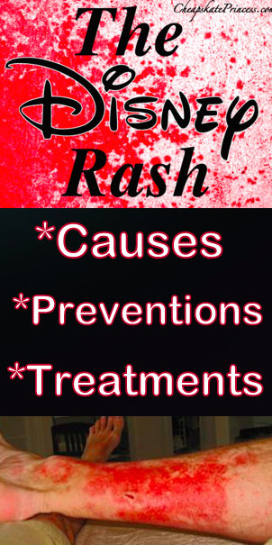The Disney Rash, what is Disney rash, cure Disney rash